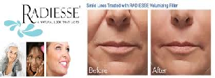 Radiesse for cheek augmentation facial folds marionette lines NY
